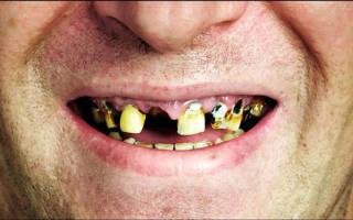 К чему снятся зубы гнилые как. Гнилые зубы толкование сонника