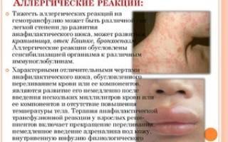 Симптоматика лекарственной аллергии. Аллергия на лекарства: фото, симптомы, что делать, лечение