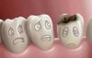Дырка в зубе во сне к чему. К чему снится Дырка в Зубе? Сонник психолога А.Менегетти К чему снятся Зубы