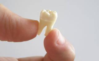 К чему снится выпадение нескольких зубов. Приснилось что выпал зуб — к чему бы? Черные корни: видеть их удаление