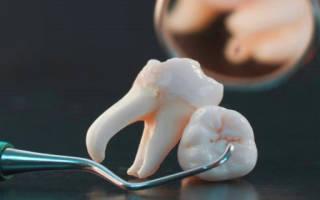 Сонник к чему крошатся зубы сне. К чему снится раскрошившийся зуб